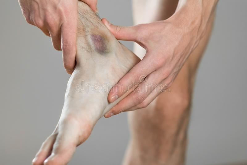 Bruise Ankle Scelalgia Man Holds His Leg Close Up Bruise Ankle Scelalgia Man Holds His Leg Close Up 165531531
